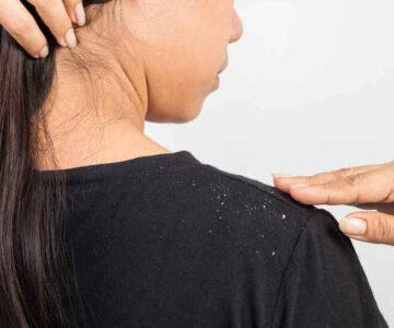 Elimina la caspa rápidamente con remedios naturales